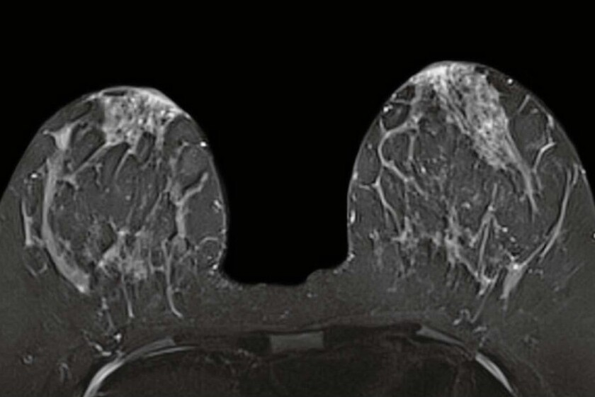 Breast-MRI image-CROP.jpg