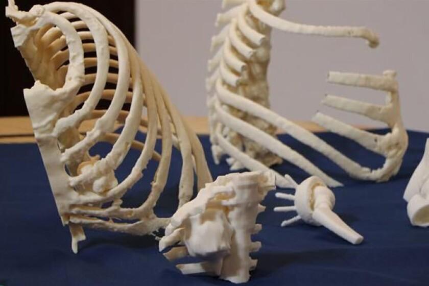 3D-Ribs-printed.jpg