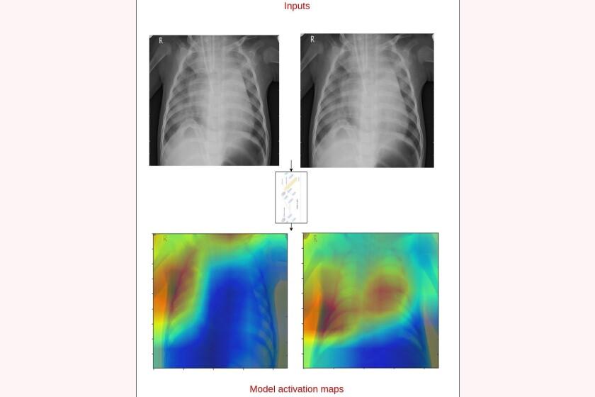 X-ray-pneumonia-CROP.jpg