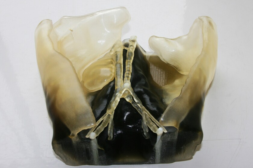 Abdomen-Kidney2-CROP.jpg