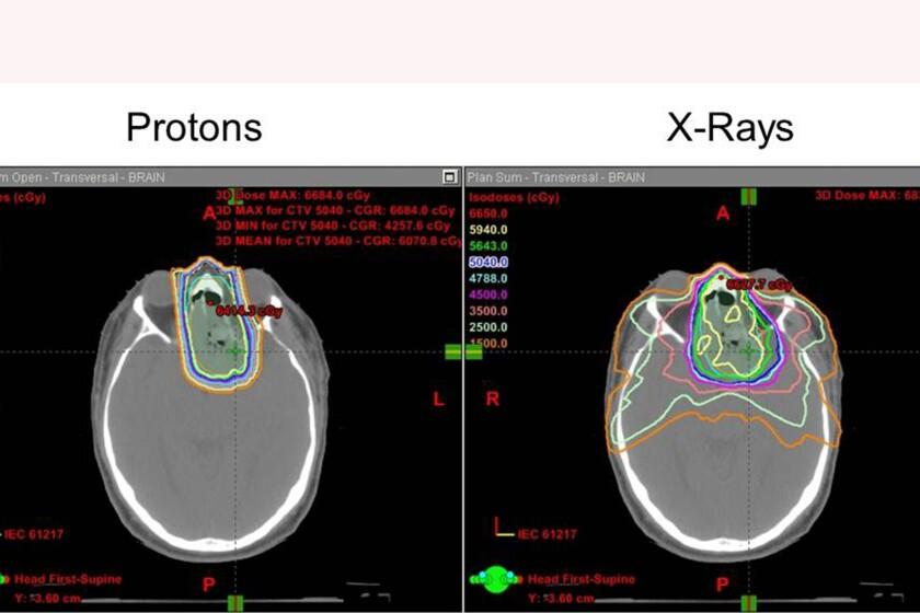Proton-therapy-margins-CROP.jpg