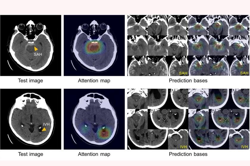 Mass General algorithm detects intracranial hemorrhage