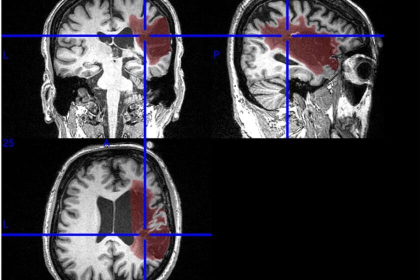 brain-MRI-CROP.jpg