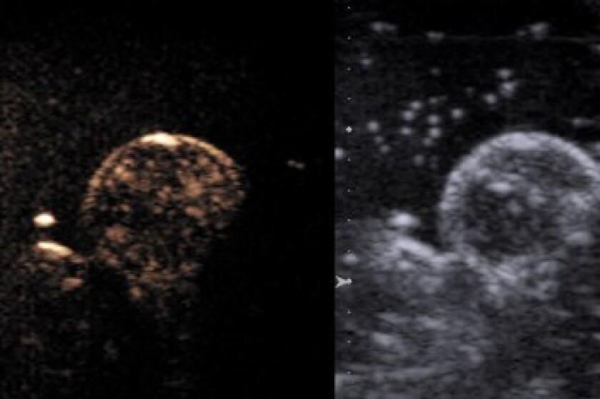 Cancer-image-CROP.jpg