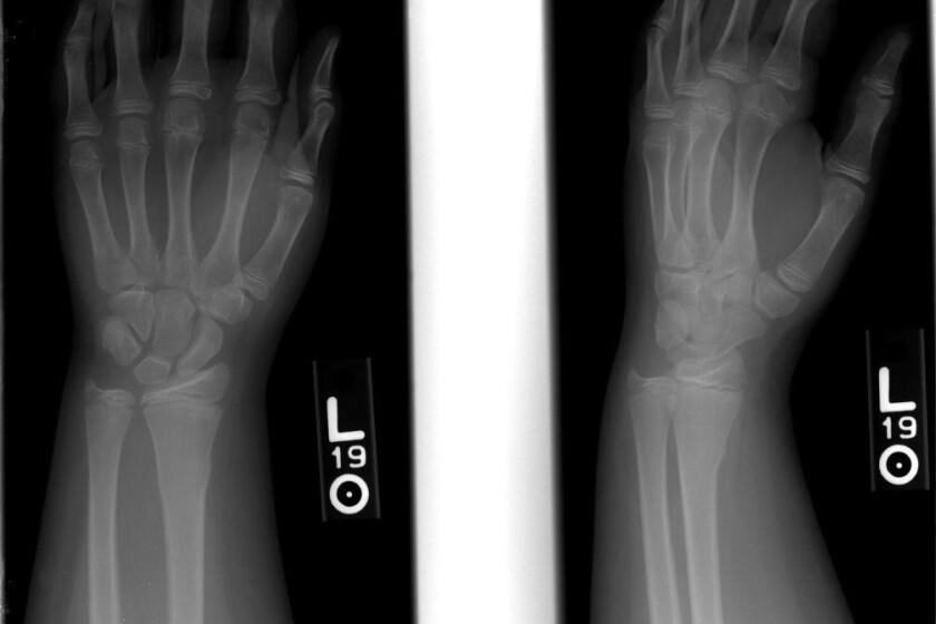 Wrist-fracture-CROP.jpg