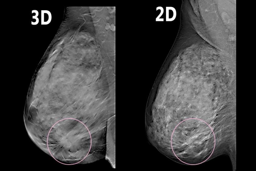 3D-mammography-CROP.jpg