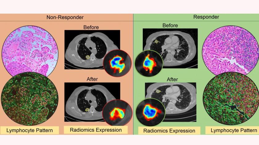CT radiomic patterns-CROP.jpg