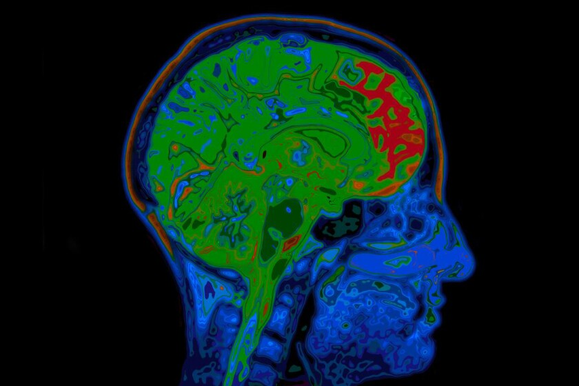 Brain scan-CROP.jpg