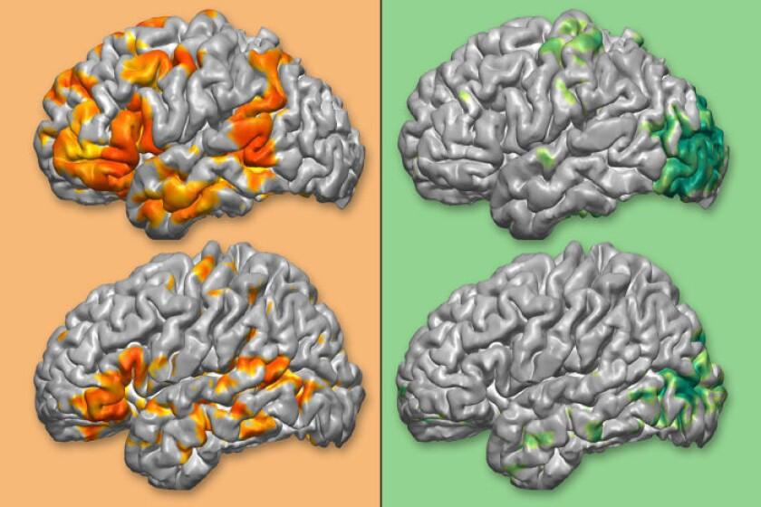 Brain_comparison-CROP.jpg