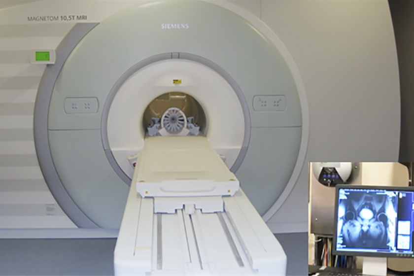 Big-MRI-pic-CROP.png
